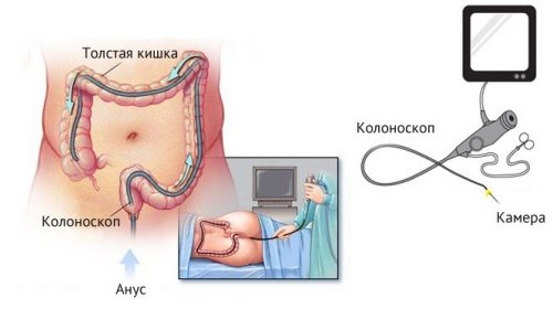 паразиты кишечника человека виды
