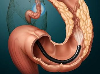 Колоноскопия кишечника, ФКС - как к ней готовиться