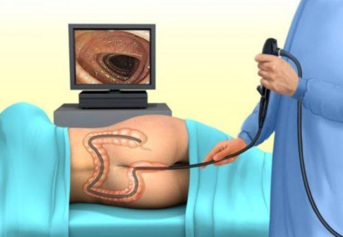 Колоноскопия кишечника, ФКС - что это такое и как к ней готовиться