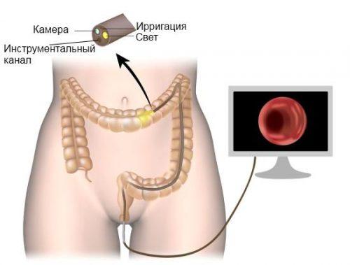 Колоноскопия кишечника: больно ли это?
