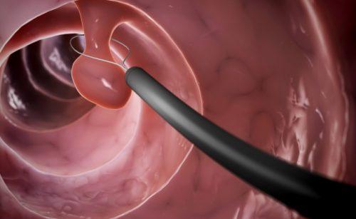 Колоноскопия кишечника: больно?