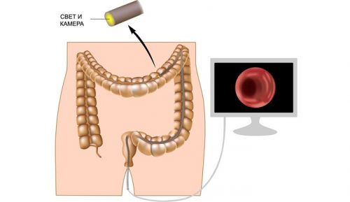 Как часто делать колоноскопию кишечника?