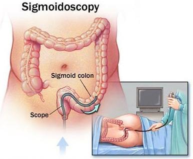 Как проходит процедура колоноскопии кишечника