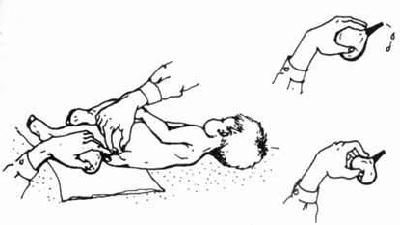 Как правильно сделать клизму ребенку 1 год