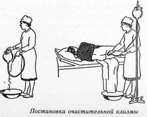 Как сделать клизму для очищения кишечника в домашних