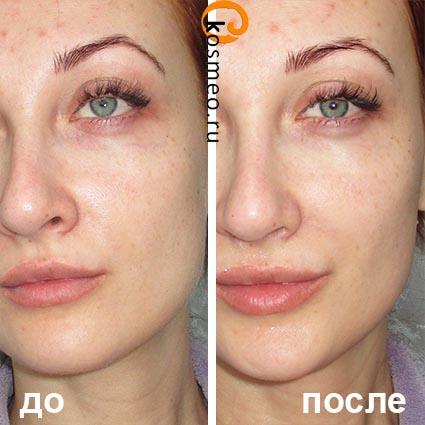 Салициловый пилинг для лица: отзывы, фото до и после, рецепты