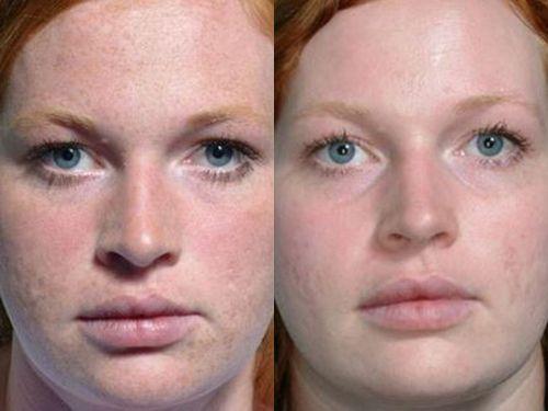 Карбоновый пилинг: фото до и после