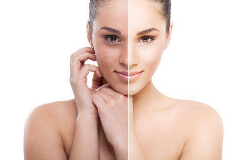 Поверхностный химический пилинг лица: отзывы, фото до и после