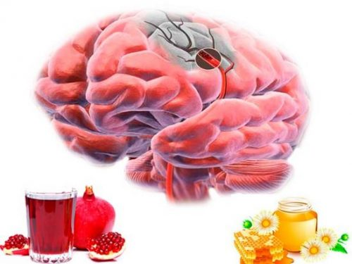 Как укрепить и восстановить сосуды головного мозга