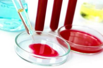 Анализ на токсоплазмоз: диагностика, toxoplasma gondii igg положительный что означает
