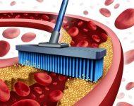 Миниатюра к статье Как почистить сосуды в домашних условиях