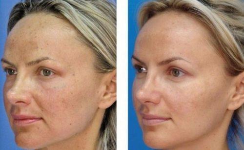 Лазерное карбоновое омоложение лица отзывы Лаеннек-терапия Улица Глинки Чебоксары