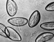 Миниатюра к статье Как сдавать анализ на энтеробиоз, симптомы и лечение