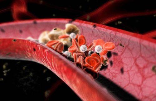Миниатюра к статье Применение меда при повышенном холестерине для чистки сосудов