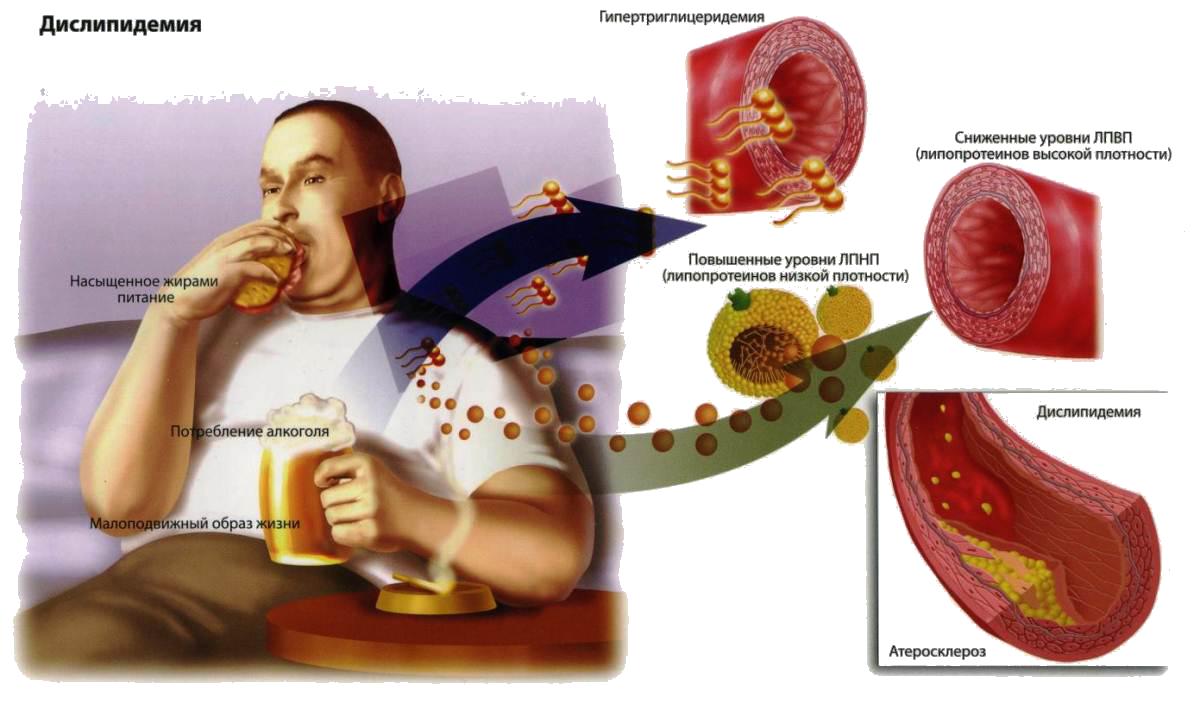 Антихолестериновая диета для женщин и мужчин