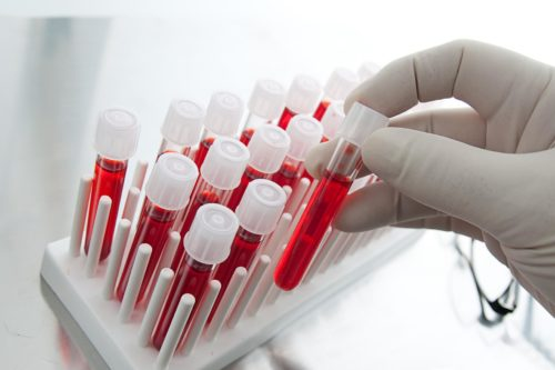 Обзор самых популярных препаратов для разжижения крови