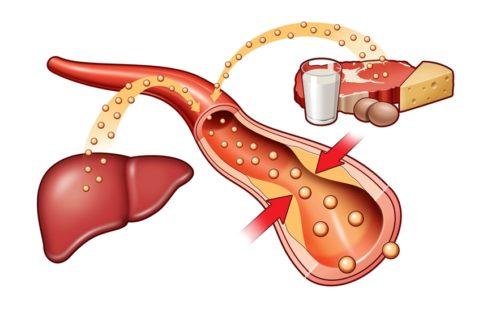 Статины для снижения холестерина: отзывы, как принимать