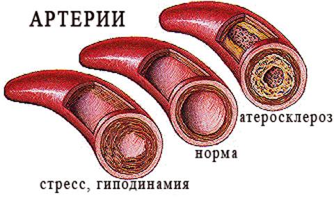 Как принимать тромбоасс для разжижения крови, до или после