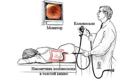 Подготовка к колоноскопии Лаваколом