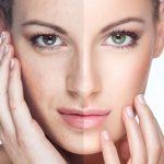 Атравматическая чистка лица: что это, отзывы, фото до и после