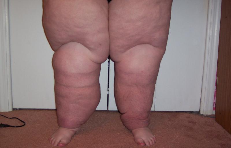Слоновья болезнь ног: лечение, причины возникновения, симптомы