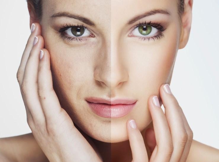 Как убрать пигментное пятно на лице в домашних условиях