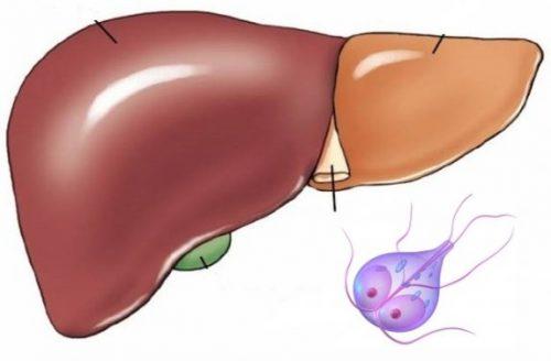 Лечение лямблий в печени у взрослых