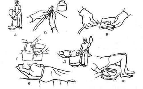 Огулов лечение содой от паразитов