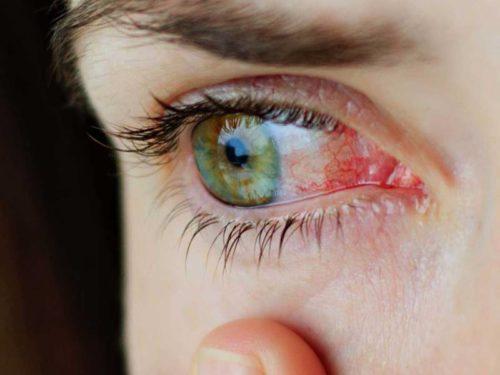 слизистая глаз