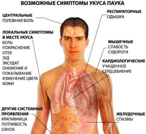 ukus-pauka simptomy
