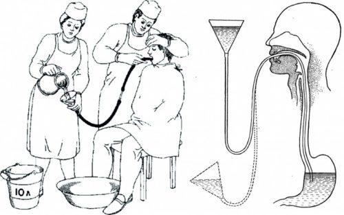 Промывание желудка медицинским углем