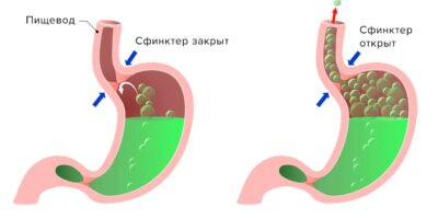 Миниатюра к статье Эффективное лечение ГЭРБ новым препаратом