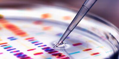 Миниатюра к статье Детоксикация организма — где сдать анализы