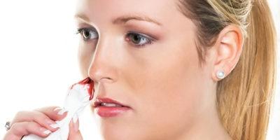 Миниатюра к статье Как укрепить слабые кровеносные сосуды в носу, чтобы не шла кровь
