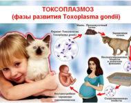 Миниатюра к статье Токсоплазмоз — диагностические меры и лечение