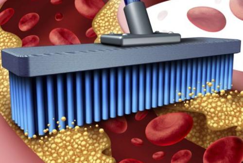 Миниатюра к статье Чистка сосудов народными средствами от холестерина: способы