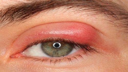 Миниатюра к статье Как лечить ячмень на глазу у взрослого