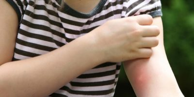 Миниатюра к статье Лучшие мази от укусов насекомых и эффективные народные средства