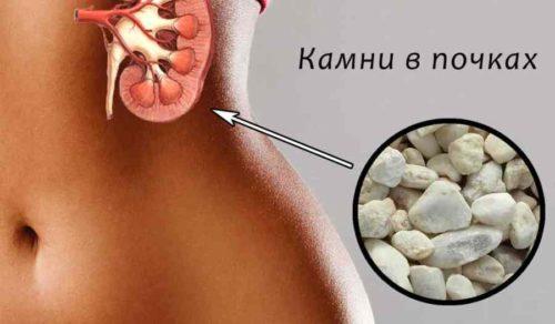 Как растворить камни в почках: препараты и народные средства