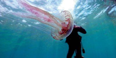 Миниатюра к статье Что делать при укусе медузы: первая помощь и лечение