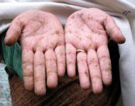 Миниатюра к статье Отравление ртутью: симптомы, что делать, первая помощь, осложнения