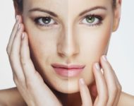 Миниатюра к статье Как быстро избавиться от пигментных пятен на лице: рецепты