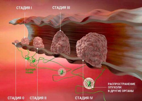 Миниатюра к статье Рак кишечника