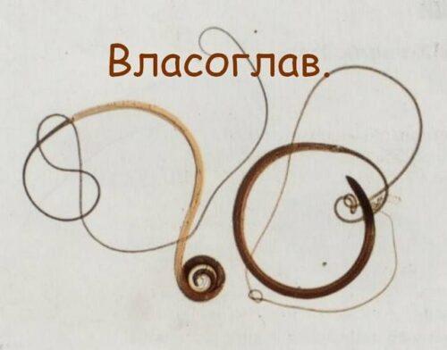 Миниатюра к статье Власоглав человеческий: симптомы и лечение, фото