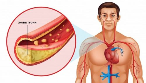 Миниатюра к статье Как быстро снизить холестерин в домашних условиях: рецепты